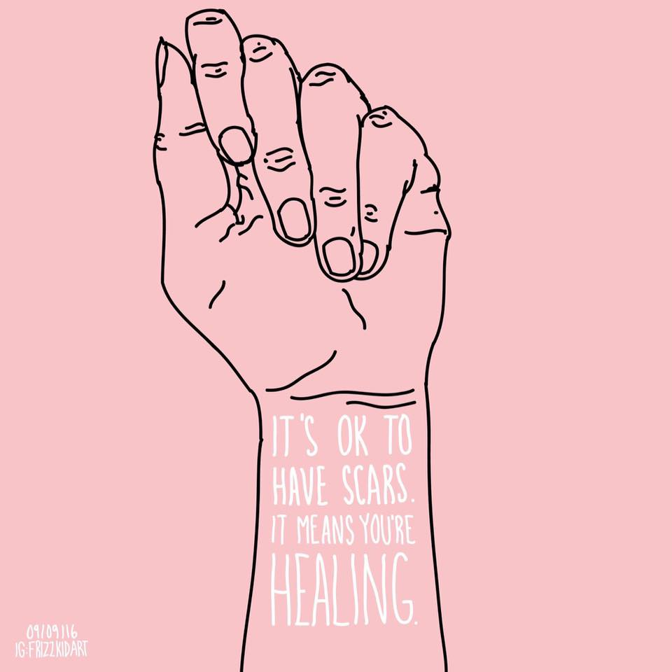 "A drawying of a hand and on the wrist it says ""It's okay to have scars. It means you're healing."""